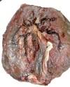 Placentaclose